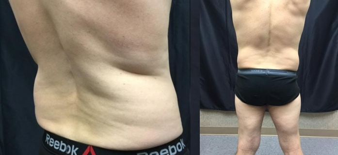 before-and-after-weight-loss-2